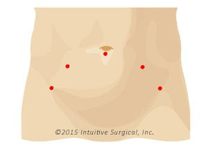 Prostatectomy Incision Comparison - low res